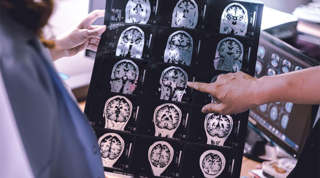Neurologie MRT Röntgen